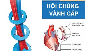(21/07/2018) Chương trình đào tạo Y khoa liên tục: Hội chứng vành cấp
