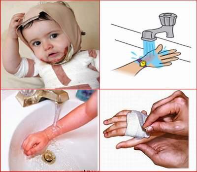 An toàn cho trẻ khi sơ cứu trẻ bị bỏng